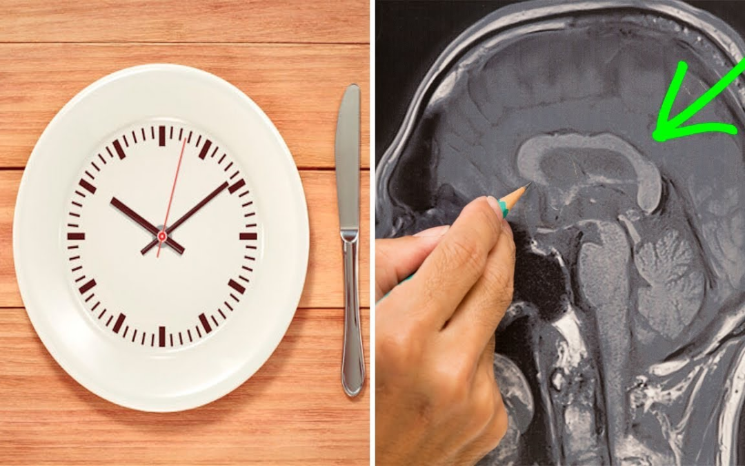 How Fasting Helps in Achieving Better Neurological Health